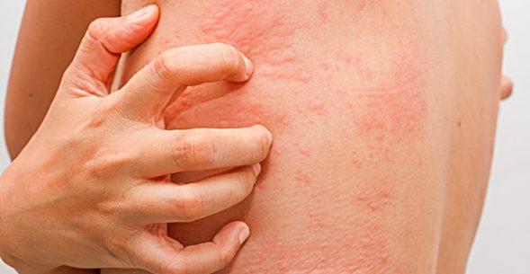 Фото kozhnye vysypaniya pri allergii 2.