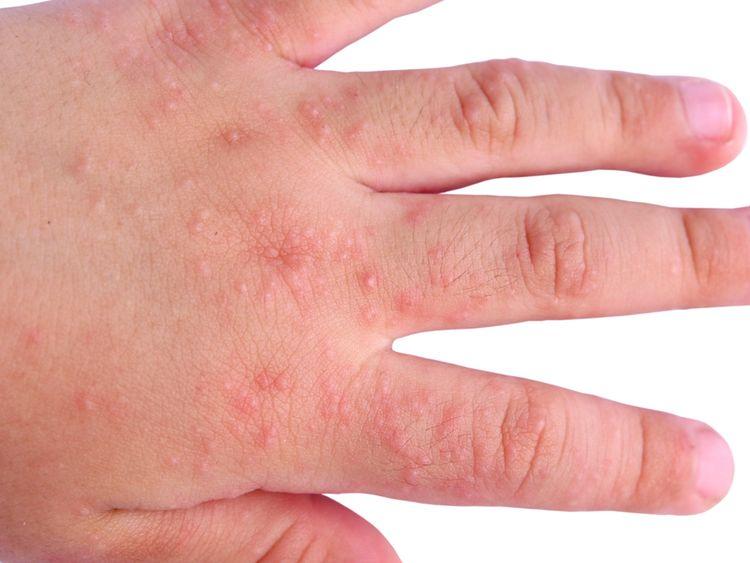 Фото kozhnye vysypaniya pri allergii 3.